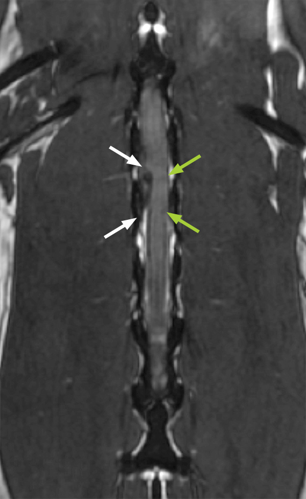 MRI scan of the spinal cord (this time in a slice viewed from above), showing slipped disc material (white arrows) bulging out and pressing against the spinal cord (green arrows), with no need for dye injection