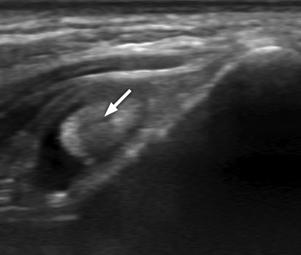 Ultrasound image of an abnormal biceps tendon (arrow) with fluid around it (showing as black).