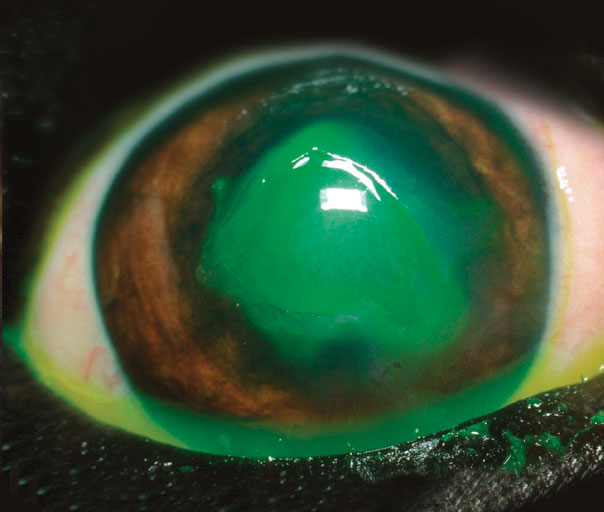 The same ulcer as shown previously, now stained with a dye to show up the defect