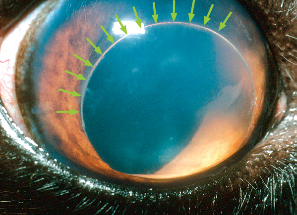 A dislocated (luxated) lens in the front chamber of the eye. The arrows mark the edge of the lens