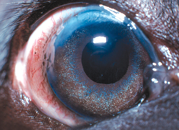 A visual eye following lens removal. Notice the faint scar at the top of the eye