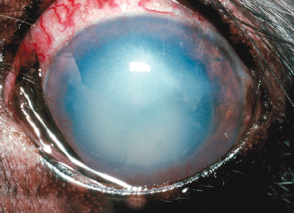 Lens luxation causing conjunctival redness and clouding of the cornea