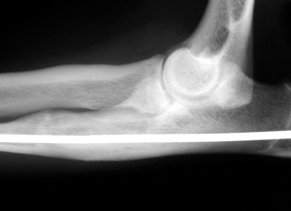 X-rays of a Cocker Spaniel with a painful elbow due to the two bones in the forearm, the radius and ulna, growing at different rates. The joint is deformed with a gap visible (small arrow). The ulna bone has been cut and lengthened so that the gap in the joint is no longer visible (large arrow). The bone has been stabilised with a metal pin. It healed within four months.
