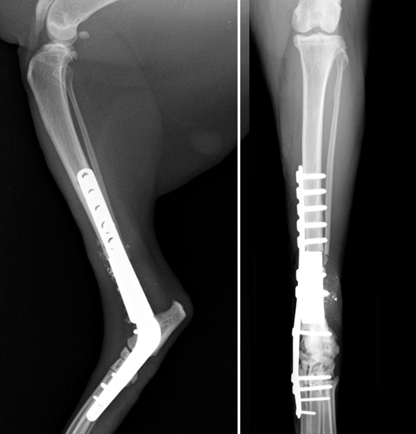 The tumour has been removed and the gap filled with a metal (tantalum) prosthesis and supported with a specially designed curved plate. It has been necessary to fuse the hock joint.